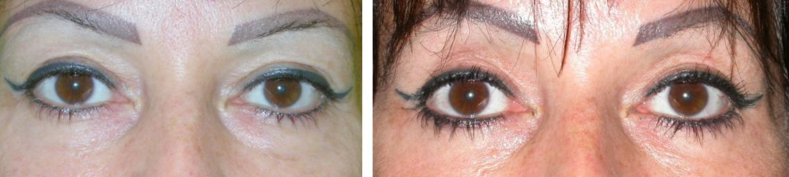 hogyan lehet eltávolítani a zsírt a szemhéjon