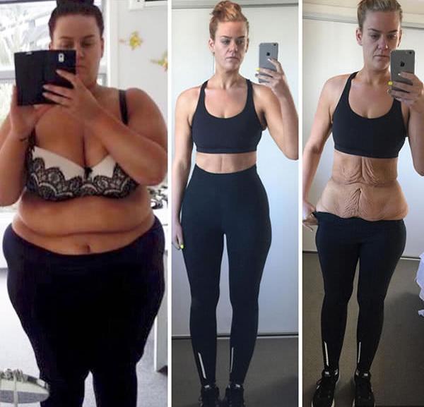 20 kg súlycsökkenés egy hónap alatt