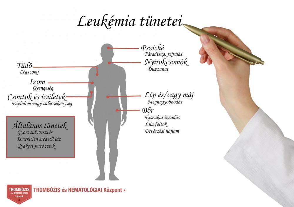 fogyás és influenza tünetek