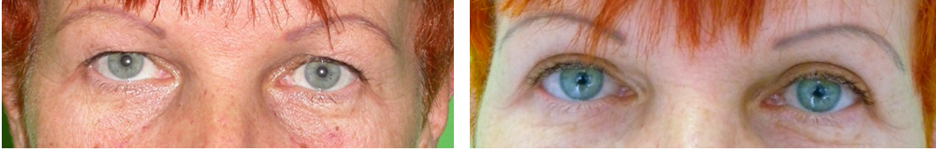 hogyan lehet eltávolítani a zsírt a szemhéjon)