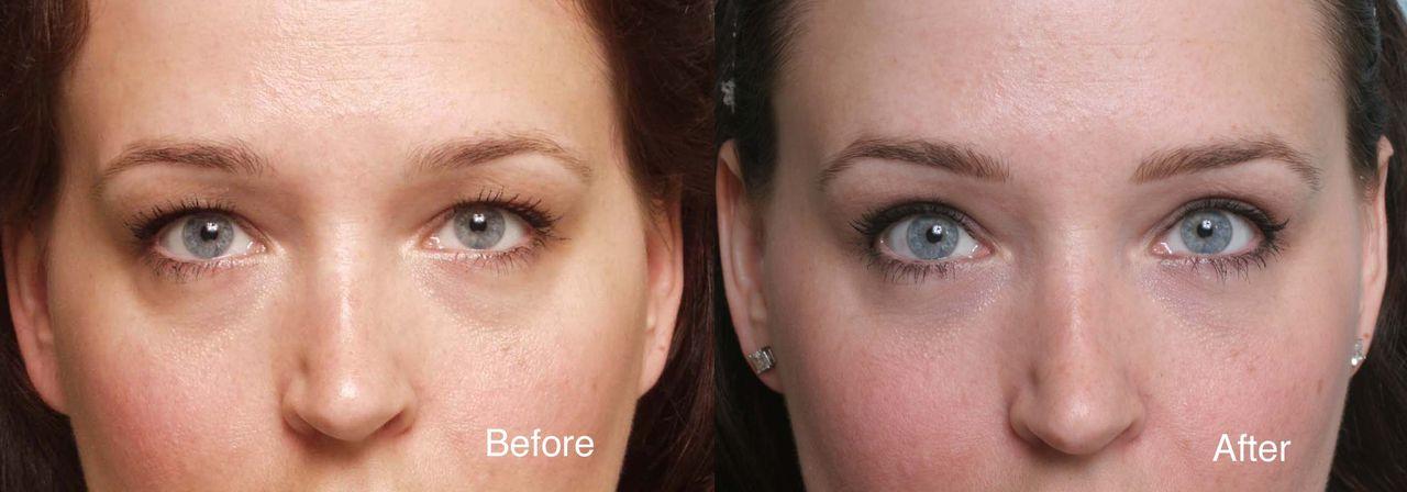 hogyan lehet elveszíteni a zsírt a szemhéjon