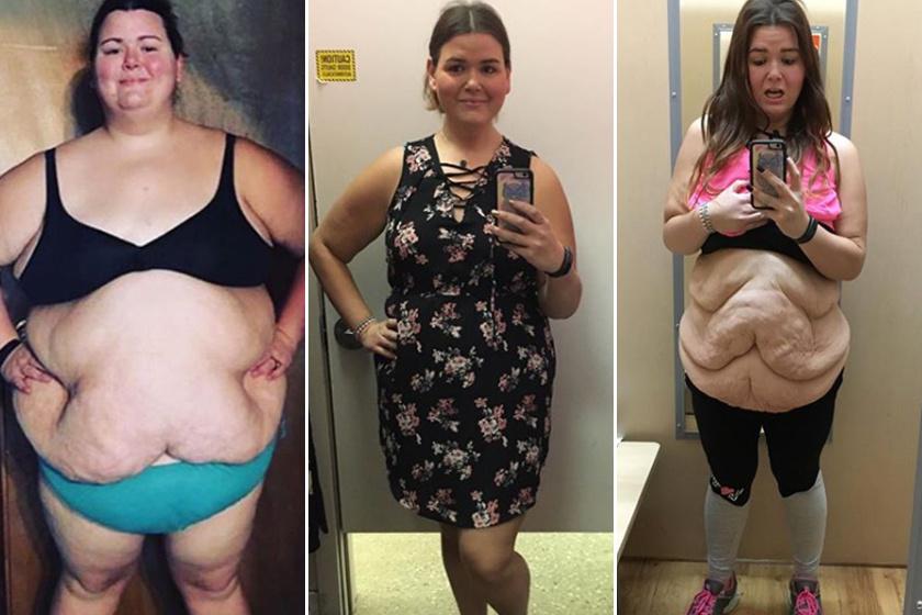 hogyan lehet egy kövér ember fogyni