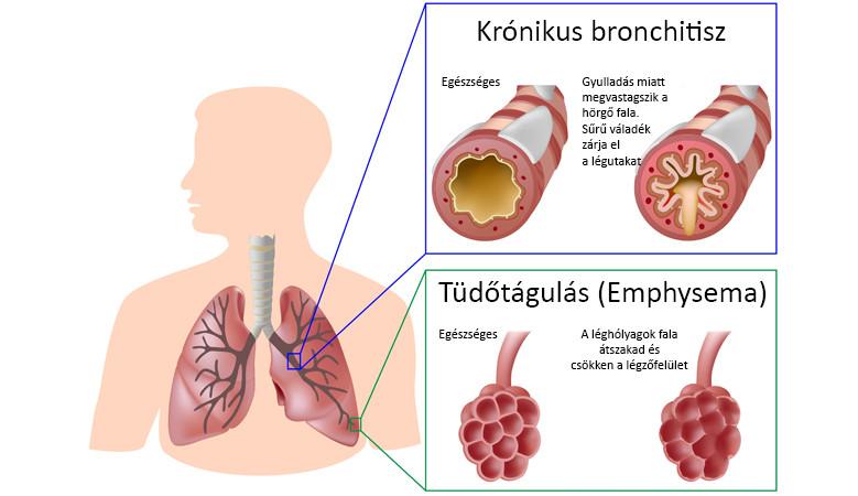 Életmódváltás, gyógyszeres és műtéti kezelés COPD-betegségben
