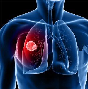 t4 fogyás mellékhatások