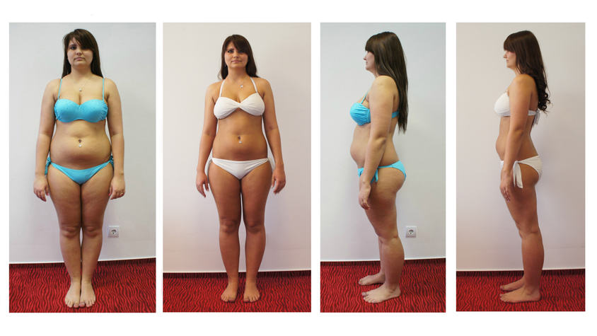 hogyan lehet lefogyni 9 hónap alatt távolítsuk el a zsírt a testemből