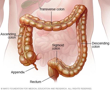 Clostridium difficile colitis súlycsökkenés