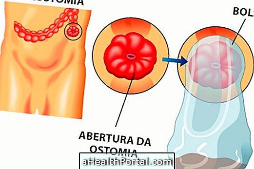 fogyni ileostomia zsírégető laboratórium Zimbabwe