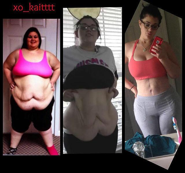 Kíméletlen őszinteséggel mutatta meg a fiatal lány, milyen 75 kilót fogyni - Ripost