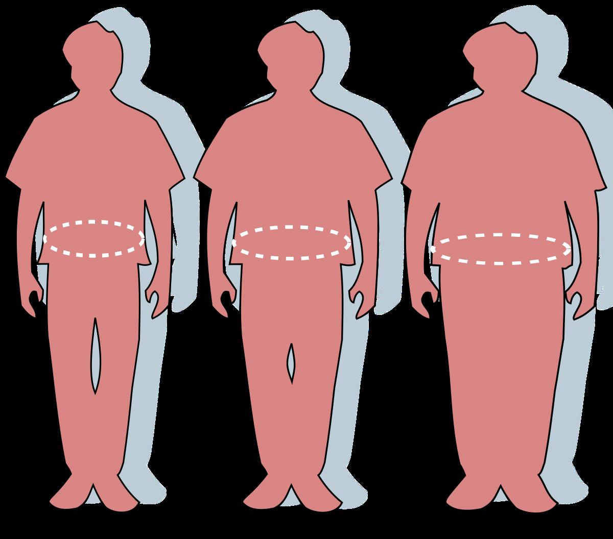 Elhízás – Wikipédia