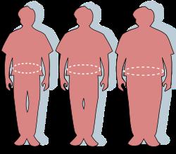 Ha már a diéta és a mozgás sem segít – fogyás szikével