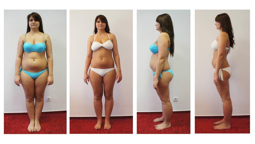 20 kg súlycsökkenés két hónap alatt)