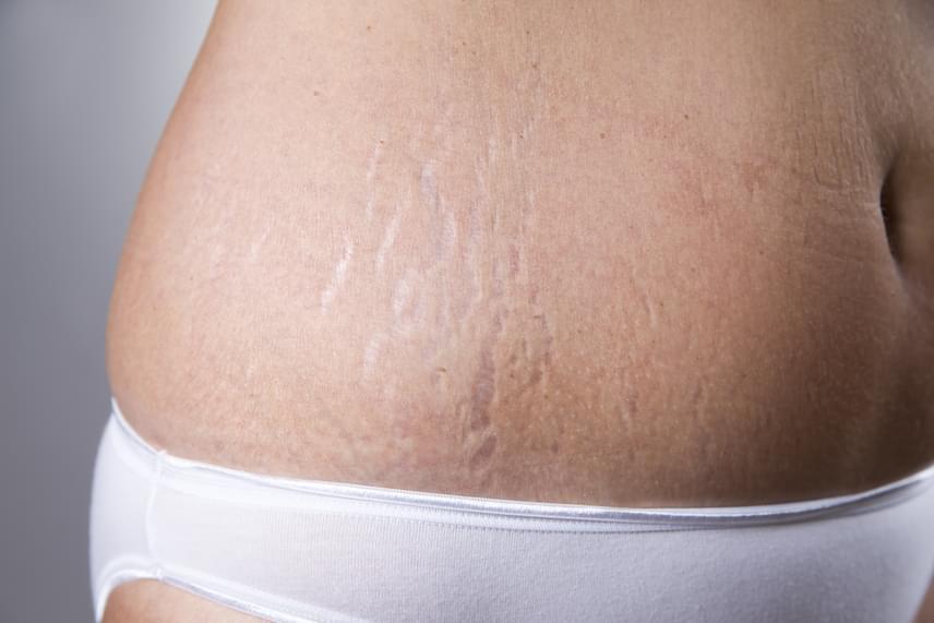 Bőr összehúzódása fogyás után - Fogyókúra   Femina