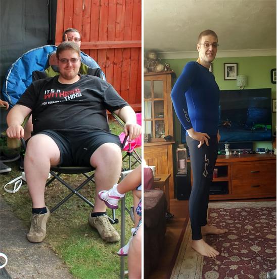 45 éves férfi lefogy távolítsa el a zsírcistát