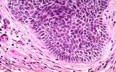 fogyás carcinoma)