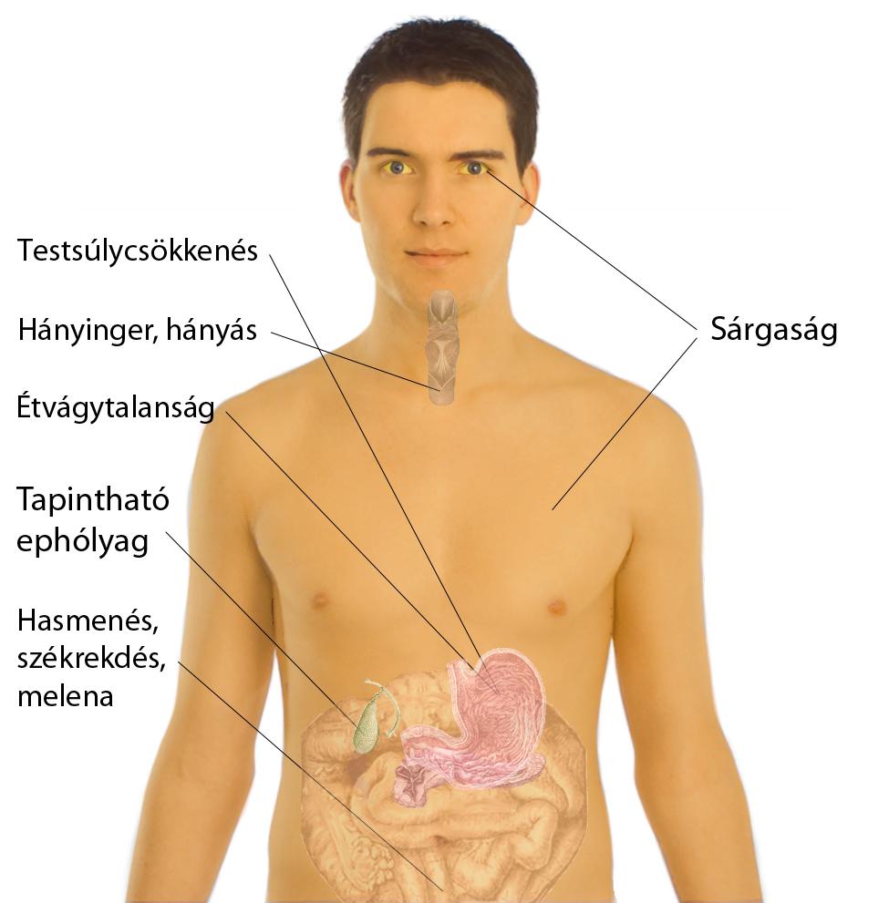 fogyás carcinoma