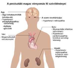 súlycsökkenés fordított pulmonális hipertóniát okozhat