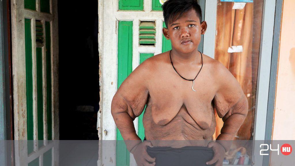 hogyan lehet egy túlsúlyos gyermek lefogyni?)