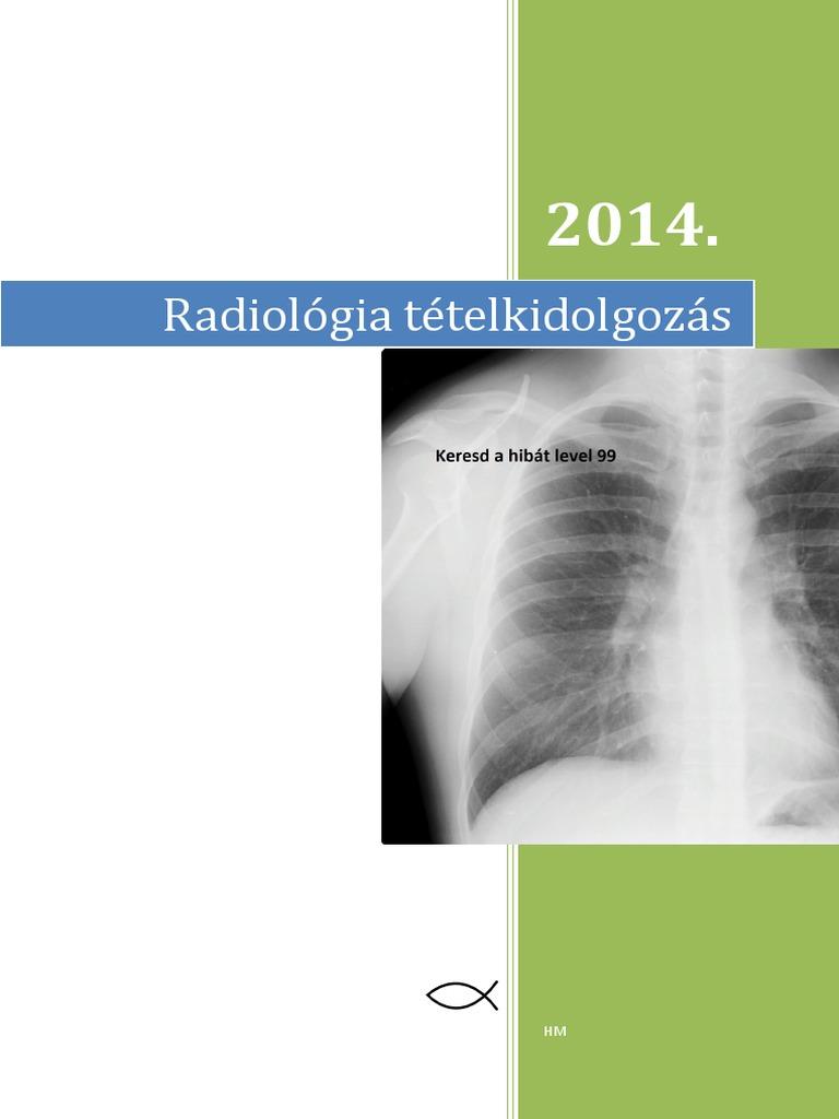 pancoast tumor és súlycsökkenés)