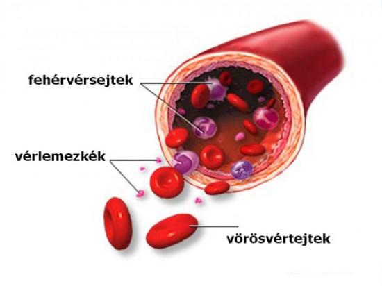 Laborvizsgálati eredmények: vérvizsgálat és vizeletminta • Dietless
