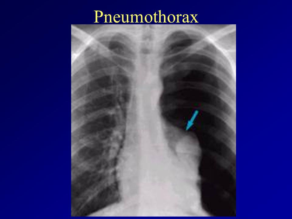 Tályog, PTX :: Dr. Kádár János - InforMed Orvosi és Életmód portál :: légmell, pneumothorax, ptx