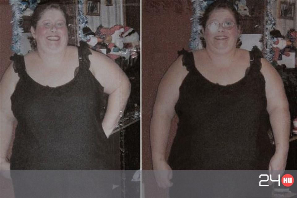Elképesztő fogyás: 115 kg-ról indult Claudia, bombanő lett belőle