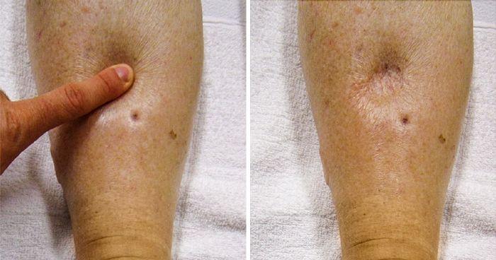 Lupus esetén nagy a trombózis esélye- előzze meg!