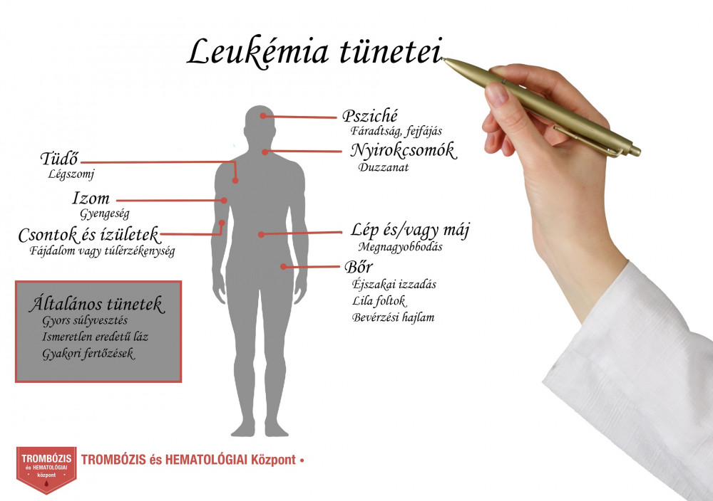 fogyás és influenza tünetek)