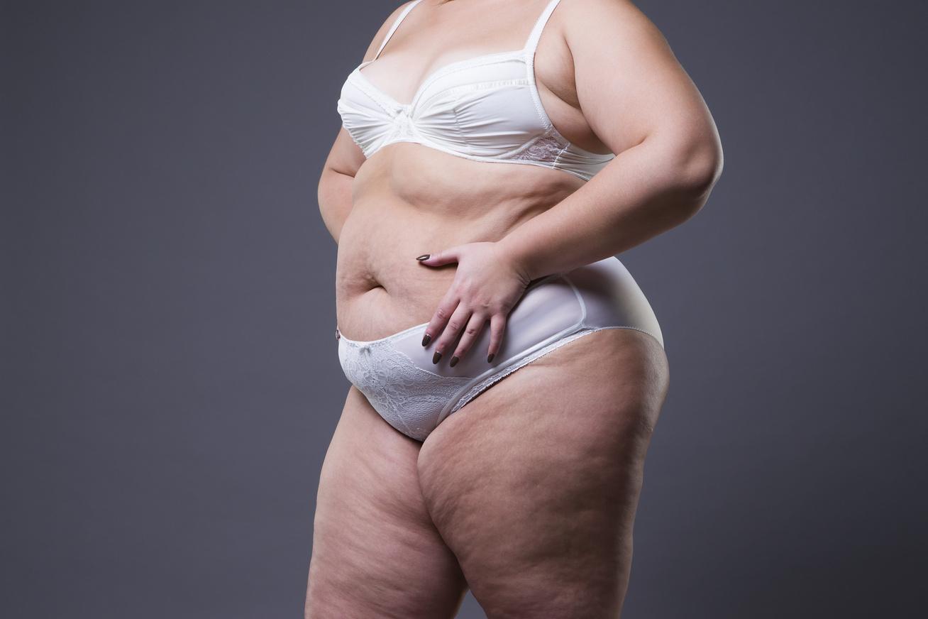 hogyan lehet elveszíteni kövér lány