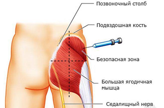 emberi koriongonadotropin a fogyás elősegítésére fokozza a zsírégetést