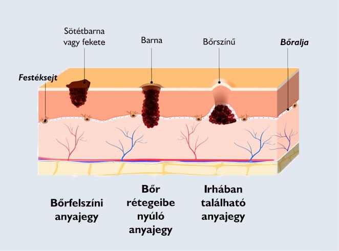 hogyan lehet eltávolítani a zsírnekrózist