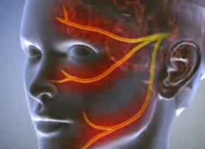 távolítsa el a zsírlerakódást a szemhéjon