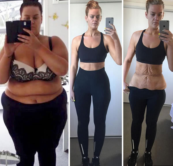 fogyni 5 kg 1 hét alatt