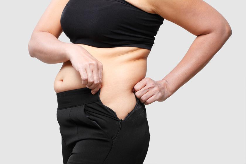 Melyik testrészedből szeretnél fogyni? Ezt kell tudnod a helyi zsírégetésről