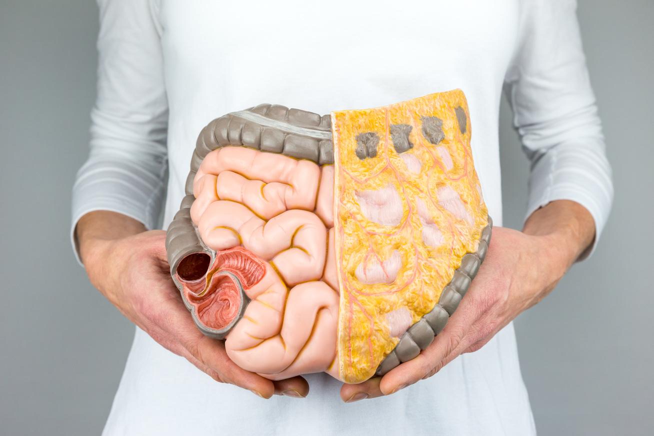 hogyan lehet eltávolítani a zsírt a zsírszövetből