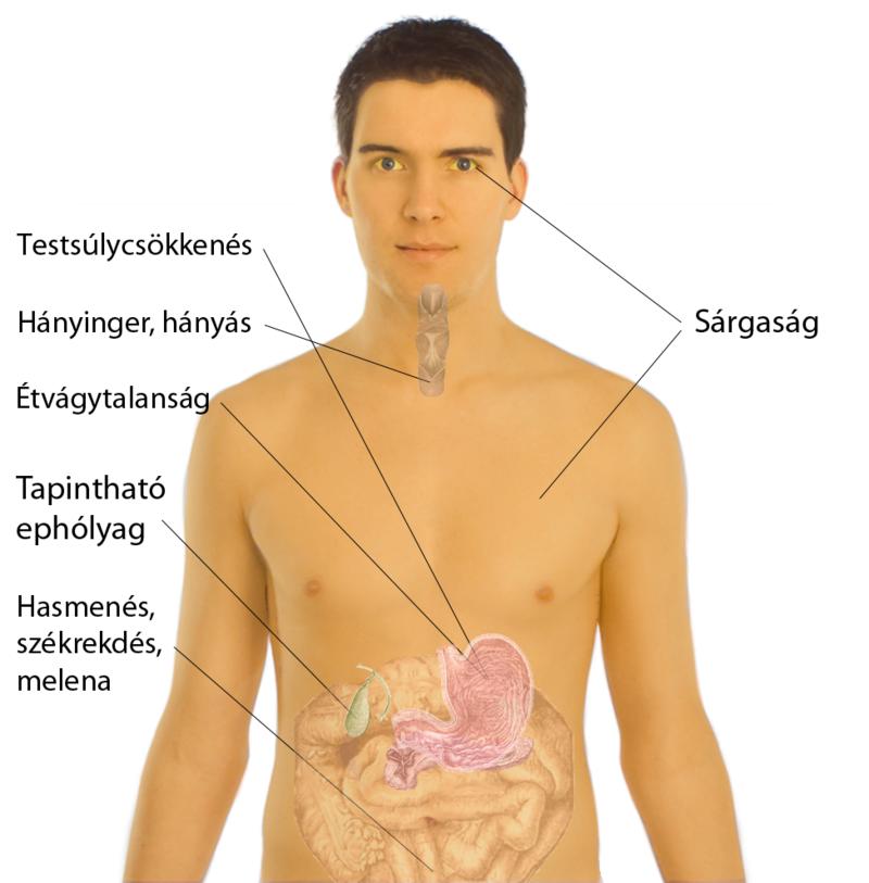 A hasnyálmirigyrák tünetei, okai, kezelése